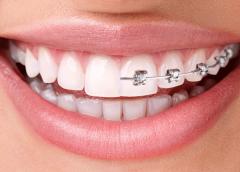 Ortodoncia Invisible, la tecnología funcionada con la estética